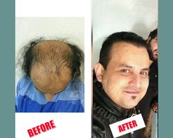 avrupasacekimi-hair-after-befor-turkey-10