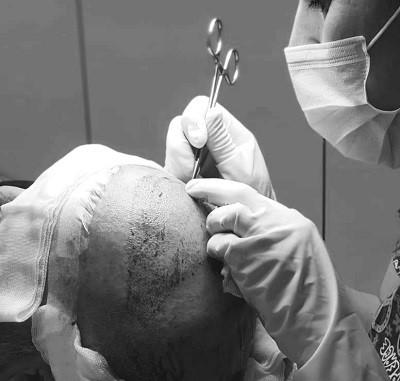 زرع الشعر في تركيا 10best hair clinics
