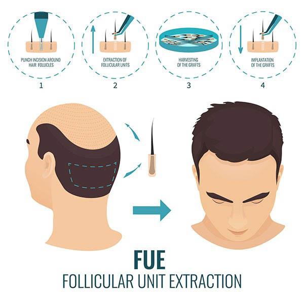 زراعة الشعر 10best hair clinics