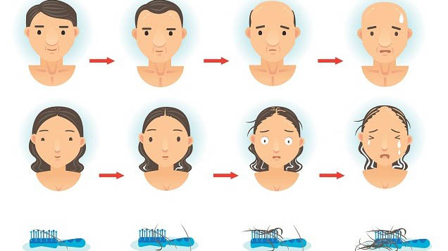زرع الشعر في اسطنبول 10best hair clinics