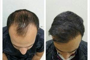 المركز الأوروبي لزراعة الشعر