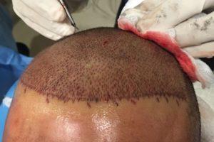 Expert hair Transplant incisions