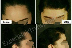expert hair transplant-after-befor-2